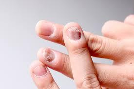 Gljivične infekcije noktiju-onychomycosis