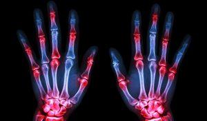 Oblici artritisa