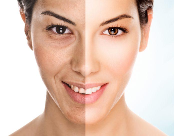 Anti Aging Cream - recenzije - nuspojave - forum - test - Hrvatska - krema