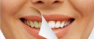 Snowhite Teeth Whitening  – sastav – instrukcije – sastojci