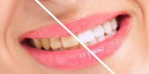 Snowhite Teeth Whitening – kako funckcionira – ebay – gel