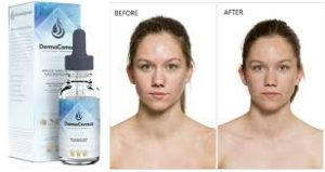 DermaCorrect - zdrava koža – gdje kupiti – test – krema